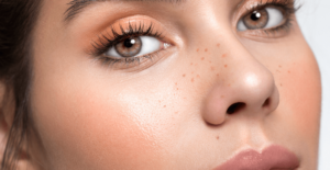 Does Microneedling Work? at L'atelier Aesthetics in Harley Street